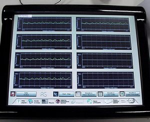 диагностика инжектора